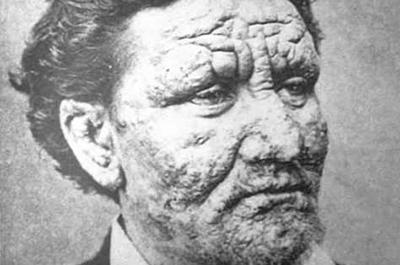 historical portrait of norwegian leprosy patient