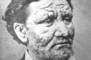 historical portrait of norwegian leprosy patient