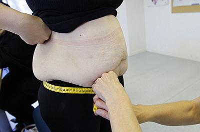 A nurse measures an obese patient