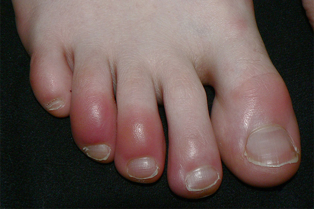 Several types of skin rashes seen in COVID-19 patients | MinnPost