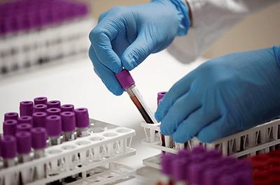coronavirus serology tests
