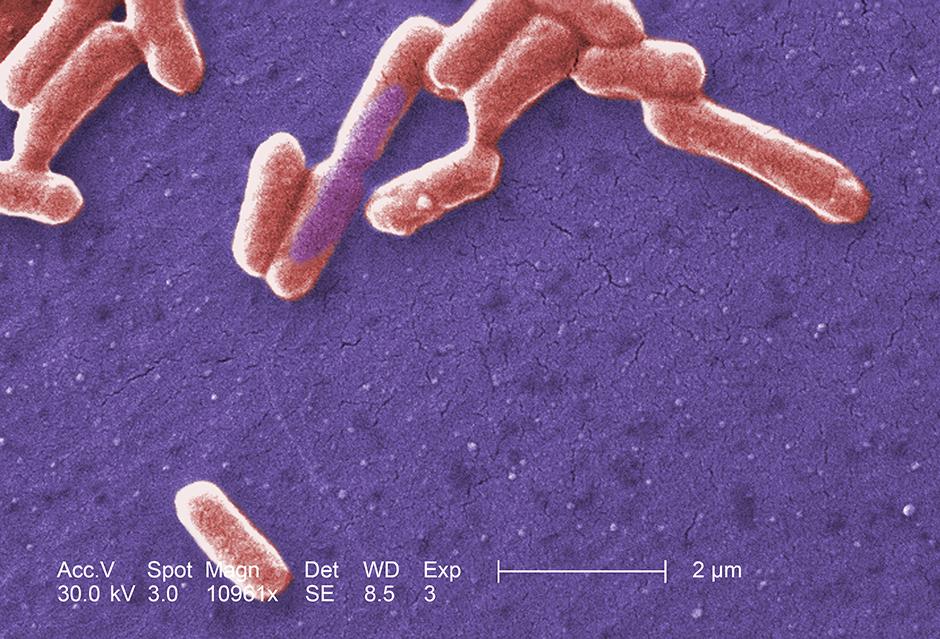 Scanning electron micrograph of an E. coli colony.