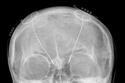 Deep-brain stimulator probes shown in an X-ray of the skull