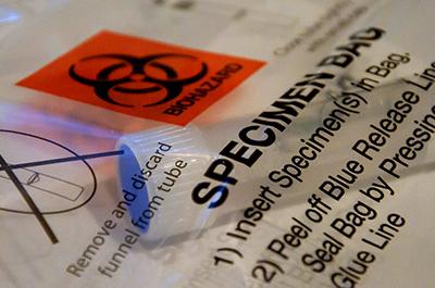 At-home DNA test kit