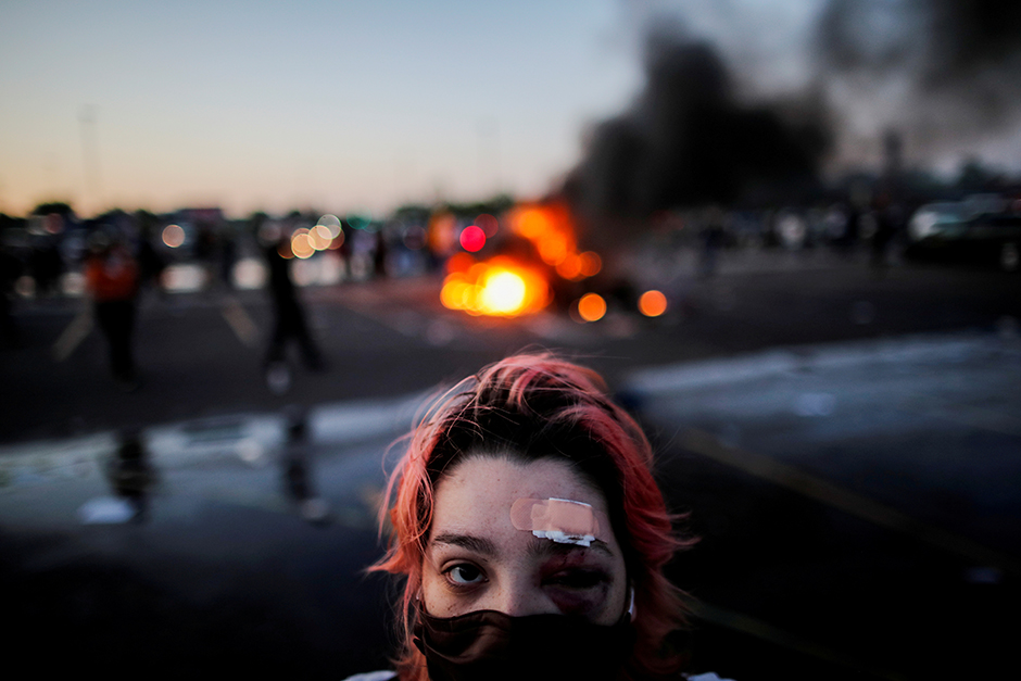 Rachel Perez is pictured with bruising around her eye and a plaster on her forehead, injuries sustained from rubber bullets during protests on May, 28, 2020, in Minneapolis.