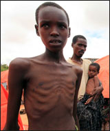 In all, the UN estimates that more than 12 million people in the Horn of Africa need food assistance.