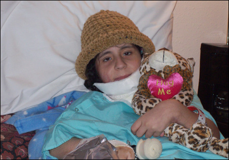 Asmaa, now 10, has come a long way since this day in the burn unit of Smith Gate.