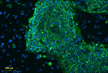 A fluorescent microscope image showing stem cells.