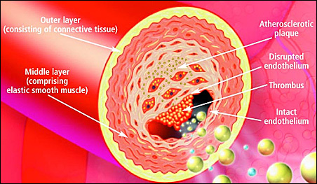 A cross-section illustration of artery plaque