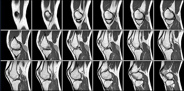 As people age, the meniscus thins and becomes more susceptible to tears.