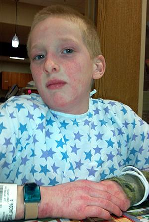 Jacob Reeves shown while being treated for juvenile dermatomyositis.